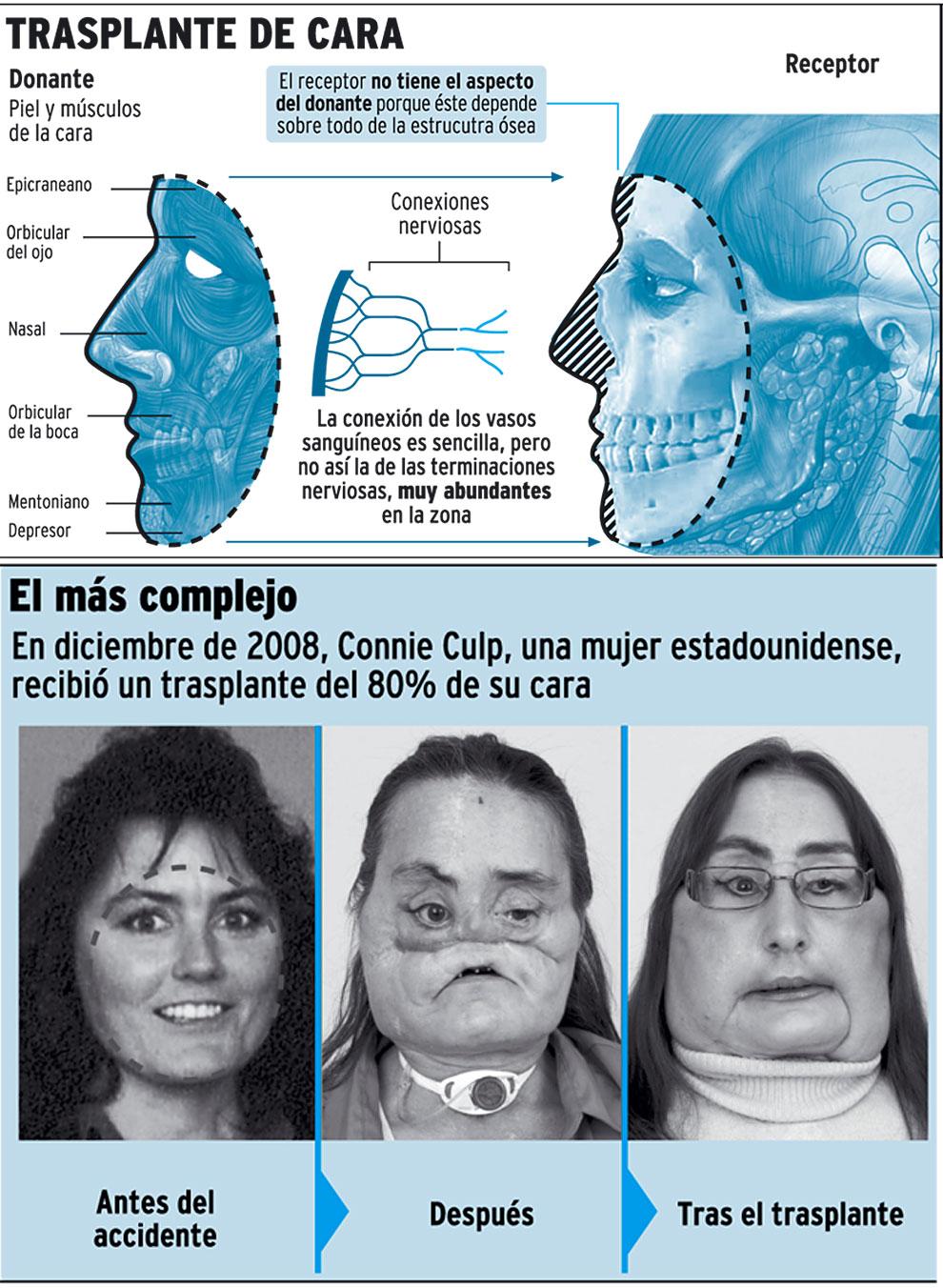 El primer trasplante de cara en el hospital la fe de valencia - La nueva fe de valencia ...